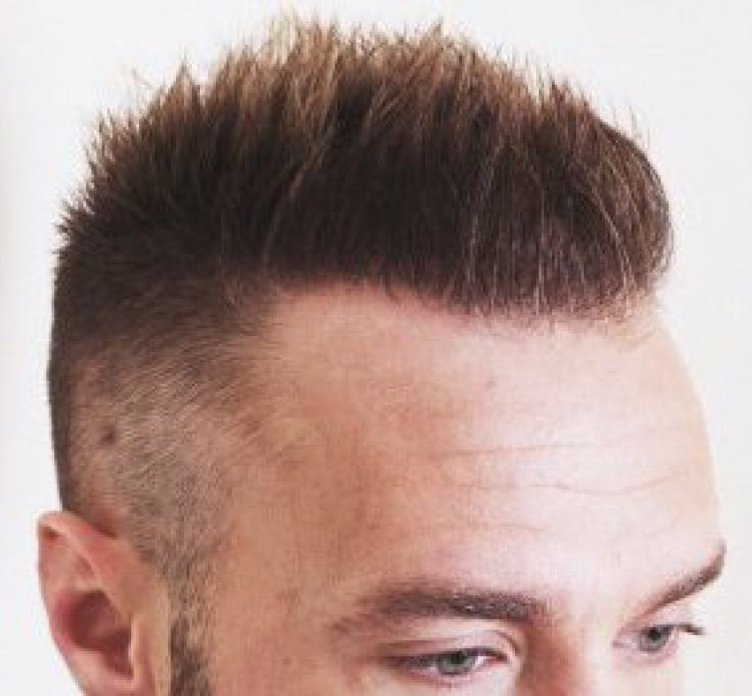 Best Long Hair Transplant Clinic in India