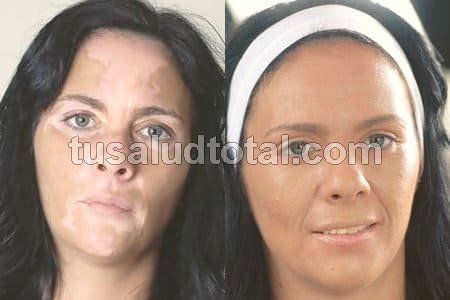 Maquillaje para Vitíligo CASERO [Y Dermopigmentación] - 2019