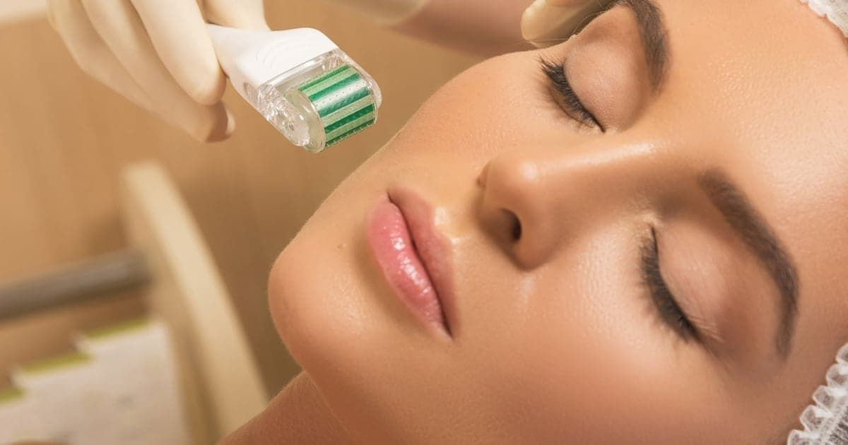 Microneedling - Mesotherapy | Mississauga & Toronto - Lip Doctor