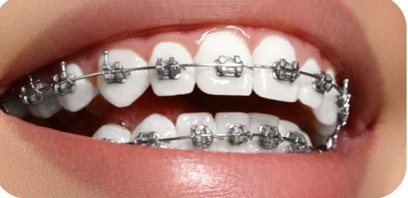 Beat Your Dental Anxiety by Visiting The Best Dental Clinic
