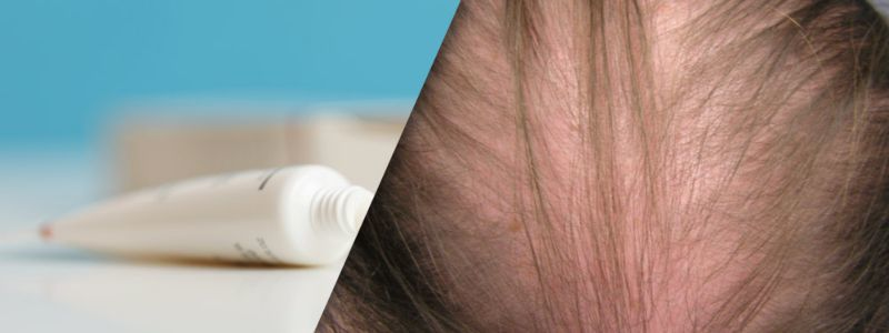 Does minoxidil work for womens hair loss? | Hair Transplant Dubai