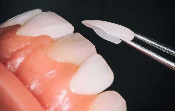 Best Dental Implants in South East London