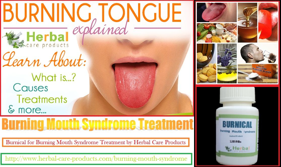 11 Natural Remedies for Burning Mouth Syndrome - Herbal Care Products