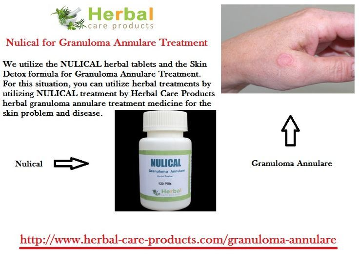 10 Natural Remedies for Granuloma Annulare - Herbal Care Products