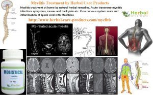 9 Natural Treatment for Myelitis - Herbal Care Products