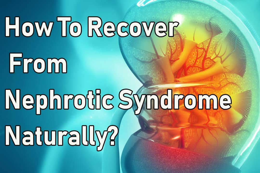 How To Recover From Nephrotic Syndrome Naturally?