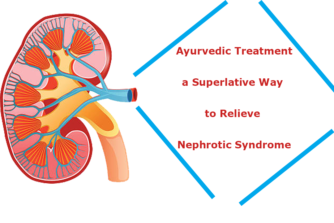 Ayurvedic treatment a superlative way to relieve Nephrotic Syndrome