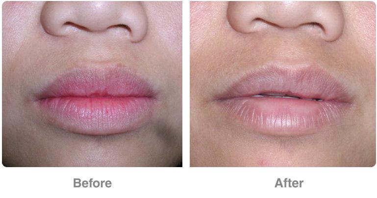 Non Surgical Lip Correction in Tirupati | Lip Reduction Clinic in Tirupati