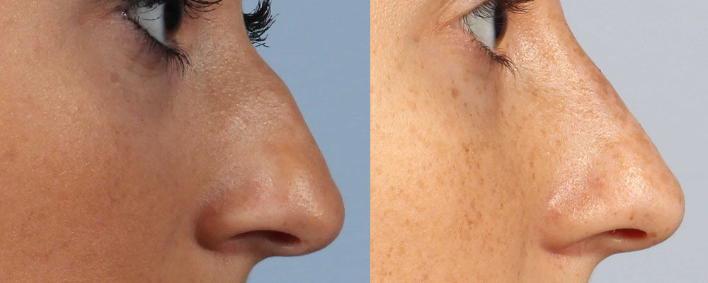 Non surgical Nose Correction in Tirupati | Nose Reshaping in Tirupati