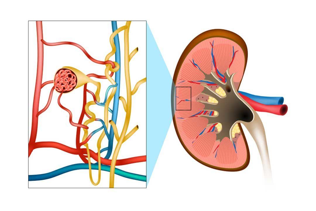 Nephrotic Syndrome Ayurvedic Treatment