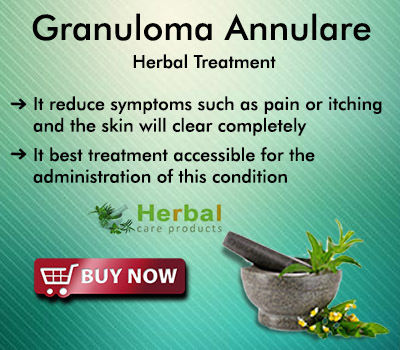 Natural Remedies for Granuloma Annulare - Herbal Care Products Blog