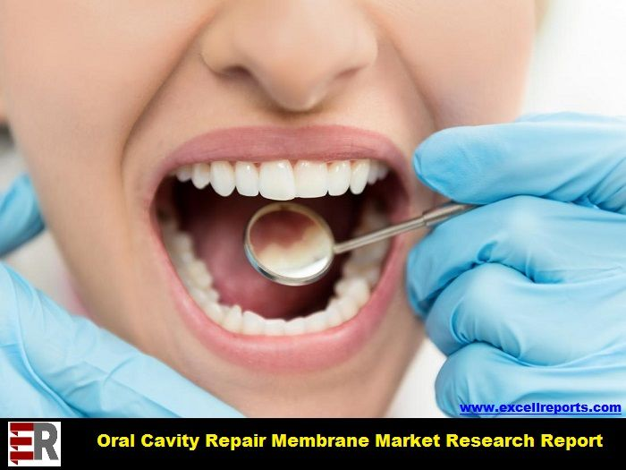 Global Oral Cavity Repair Membrane Market Expected to Deliver Dynamic Progression until 2024