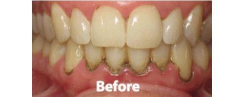 Gum Treatment in Mumbai | Dental Crown | Teeth Crown | Royal Implant