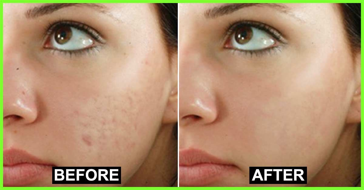Pigmentation Treatment in Tirupati | Skin Pigmentation Clinic in Tirupati