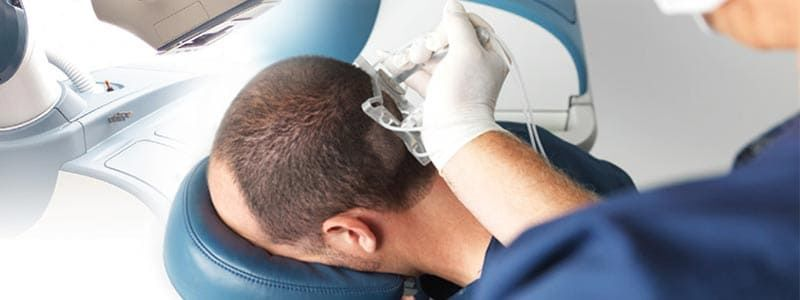 7 Warning Signs Your Scalp is in Trouble | Hair Transplant Dubai