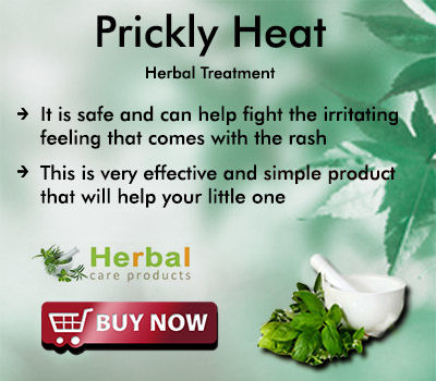 Natural Remedies for Prickly Heat and Keep Cool in The Summer