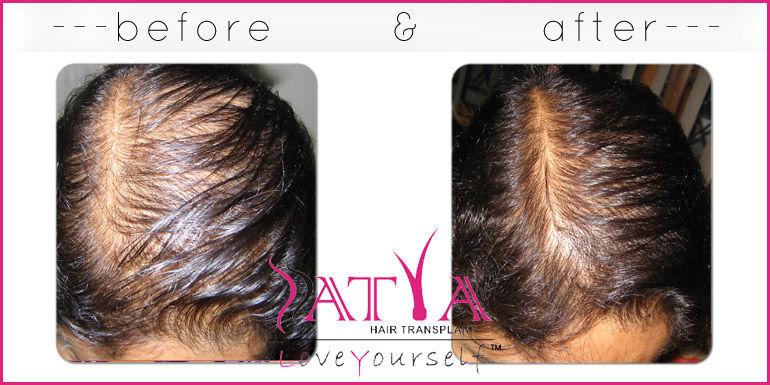PRP for Hair Loss / regrowth in Delhi - Satya Hair Clinic