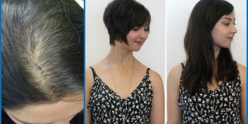 Regrow Hairs With Onion Juice - Best Hair Transplantation Dubai