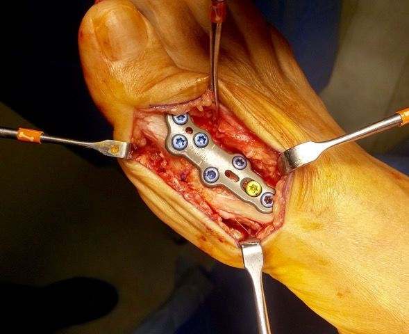 Do you Know About Removal of Orthopedic Implant?