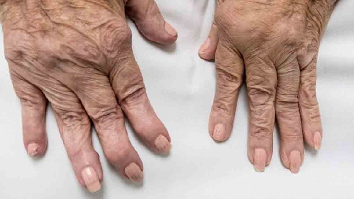 What is the Ayurvedic and Panchakarma Treatment of Rheumatoid Arthritis?  |