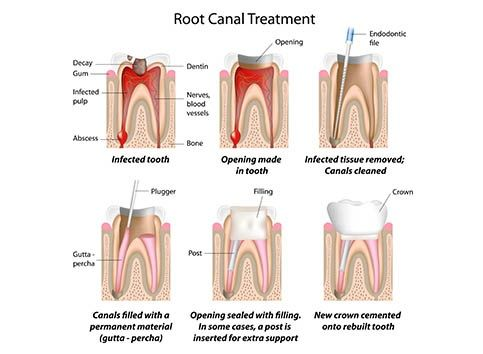 Concerned about infected tooth?   Root Canal Treatment and Costing in Pune