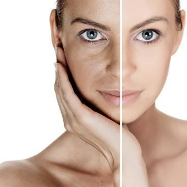 Skin Replacement Market 2019 Players focusing on innovation to develop newer products and collaboration strategies (Integra LifeSciences, Anika Therapeutics, Vericel Corporation, Organogenesis, MedSkin Solutions, Stratatech, Upside Biotechnologies), Deman - openPR