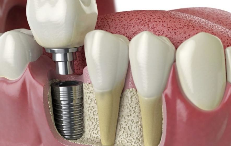 Dental Implants Market Share. Analysis of Top Companies/ Surgeons (AG, Bicon Dental Implants, Anthogyr, KYOCERA Medical, Lifecore and more) Set to Rise more than 6% CAGR by 2025 - openPR