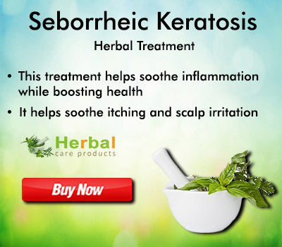 Herbal Care Products: Natural Home Remedies for Seborrheic Keratosis Everything You Need to Know