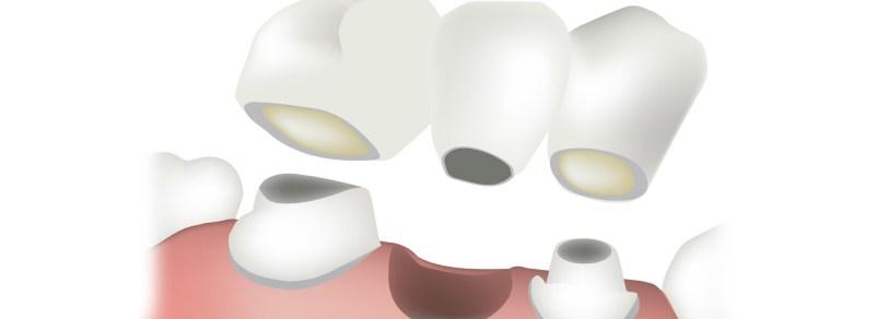 Prahran Dentist Professionals Are Discussion About Dental Bridges In Detail