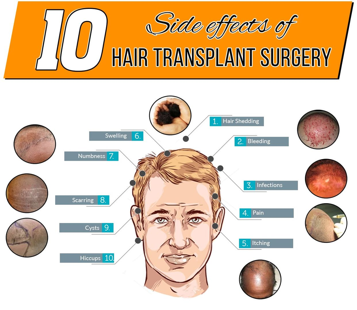 10 Side effects of Hair Transplant Surgery - AK Clinics