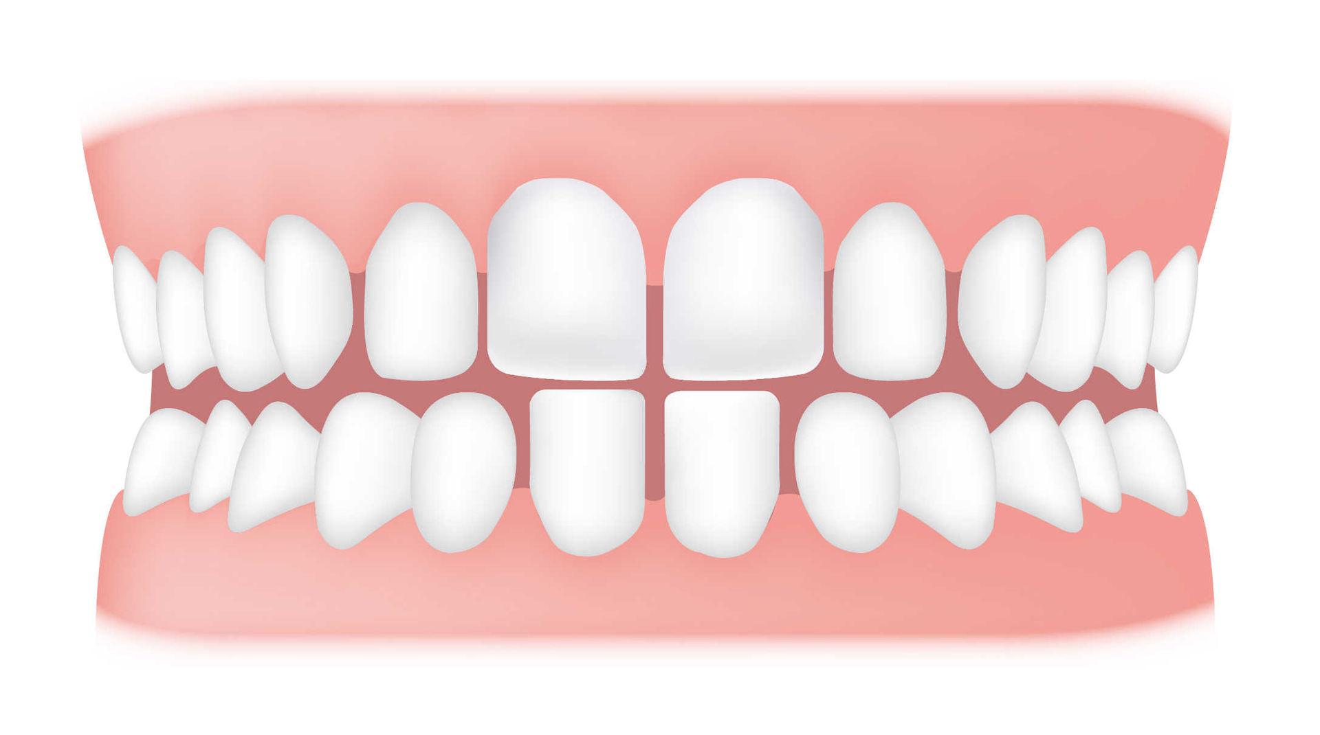 Cheap Teeth Bleaching Products