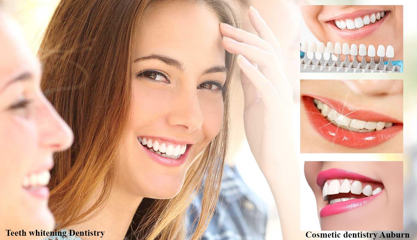 Teeth whitening Dentistry in Auburn | Cosmetic dentistry Auburn WA