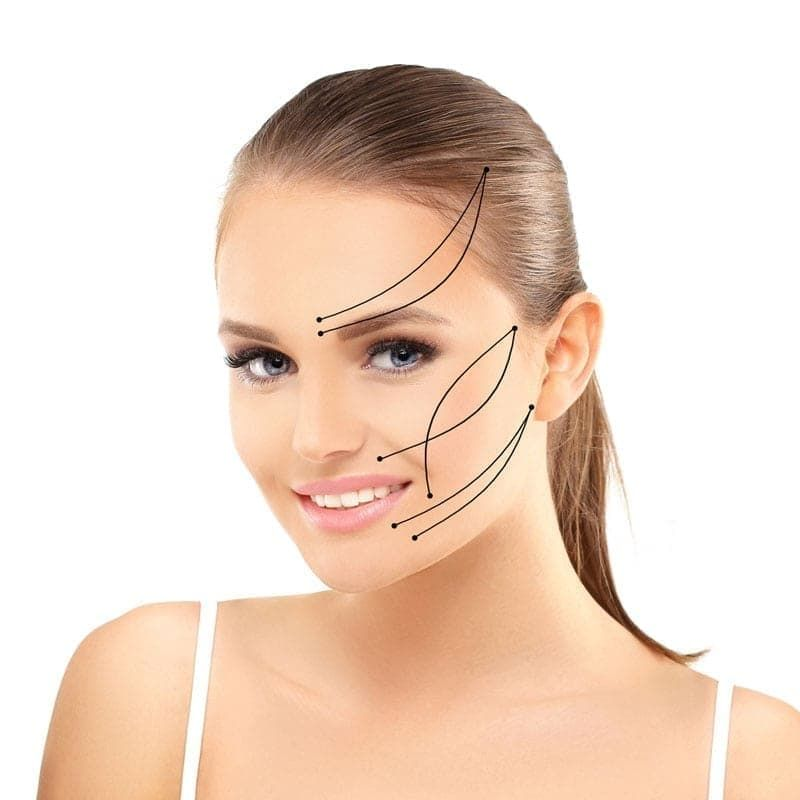 Threadlifts - Silhouette Soft Facelift | Mississauga & Toronto - Lip Doctor