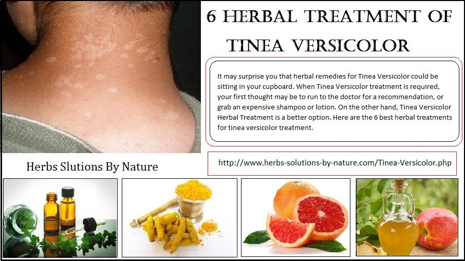 6 Herbal Treatment of Tinea Versicolor - Herbs Solutions By Nature