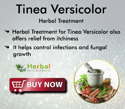 Natural Remedies for Tinea Versicolor Get Rid of Fungal Infection