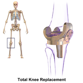 High Flex Knee Replacement Surgery in India - Healing Touristry