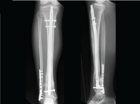 Uso del enclavamiento intramedular en el tratamiento de fracturas