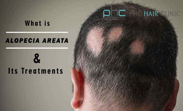 Alopecia Areata Treatment: How Alopecia Areata can be cured?