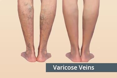 Varicose Veins Treatment in Hyderabad, Telangana | Dr. Abhilash
