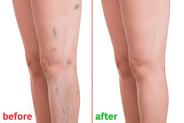 Best Varicose Veins Laser Treatment in Hyderabad | Dr. Abhialsh