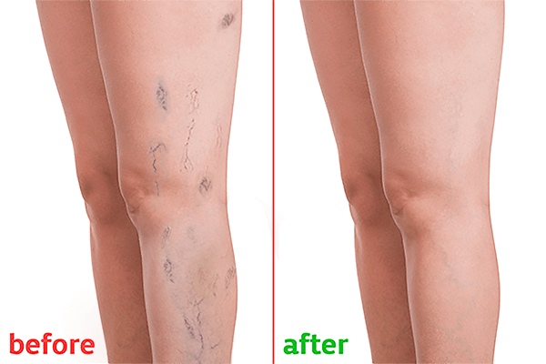 Varicose Veins Laser Treatment | Vascular Veins Specialist in Hyderabad