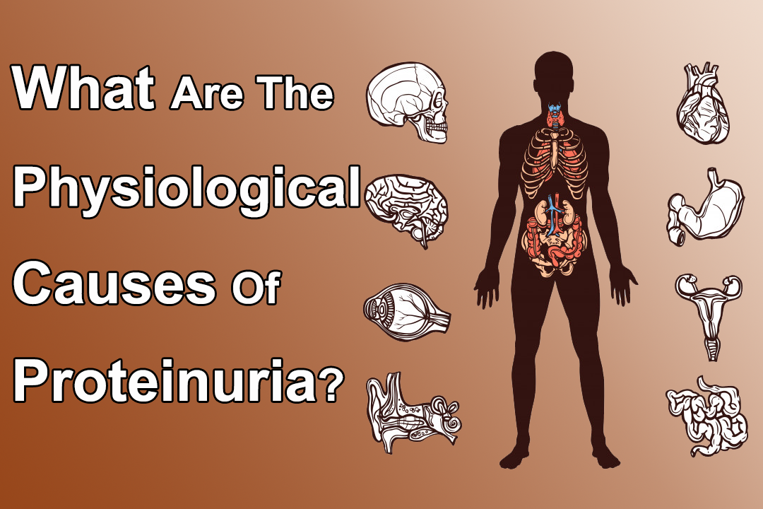 What Are The Physiological Causes Of Proteinuria?