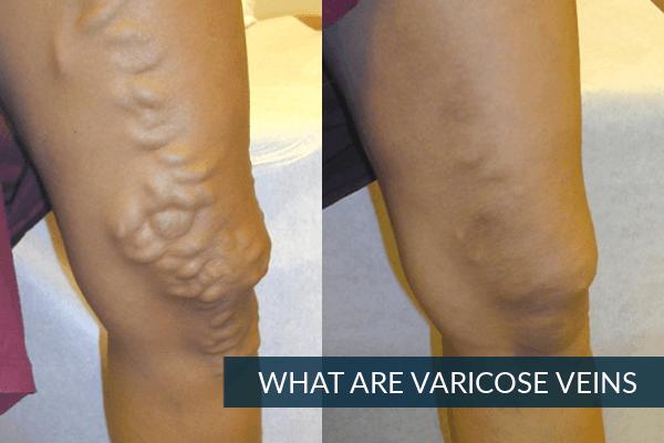 Varicose Veins Laser Treatment in Hyderabad | Varicose Veins