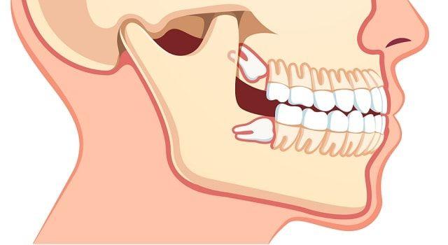 wisdom-teeth