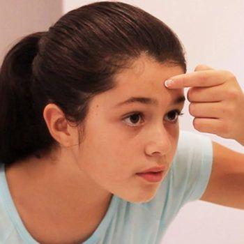 Parents of Acne Kids | ACNE OH NO : Acne is Manageable.