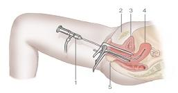 Affordable Cost Hysteroscopy at WFS Delhi India to help You Concieve!