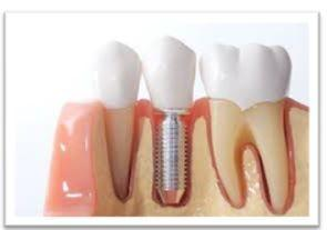 How Choose Emergency Dentist South East London?