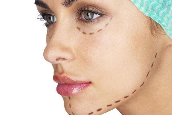 Face Implant Surgery In Dubai, Face Enhancement Dubai