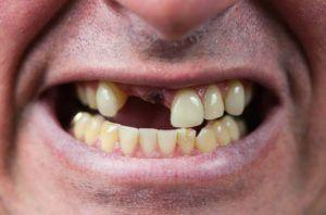 Why Replace Missing Teeth With Dental Implants? | Ban R Barbat | Township, Michigan