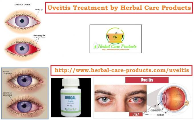 10 Natural Remedies for Uveitis - Herbal Care Products